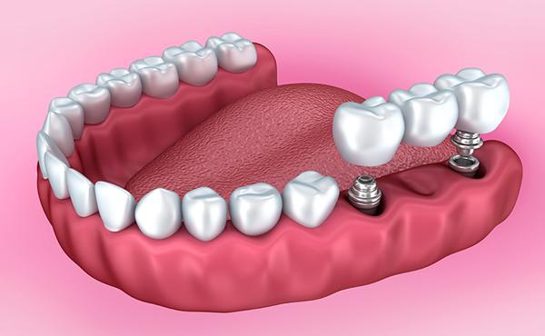 Couronne dentiste